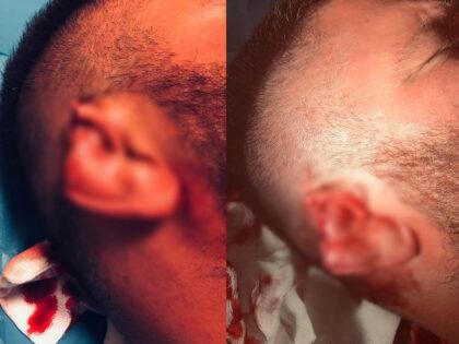 Brutalny atak ukraińskiego imigranta na polskiego sportowca. Odgryzł mu ucho!